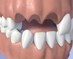 """""""Имам предни зъби за вадене.Не искам да ходя без зъби докато ми правят протезата!Има ли начин?"""""""